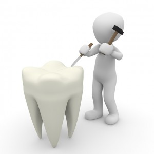 tooth-1015409_640