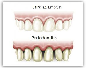 periodental_image